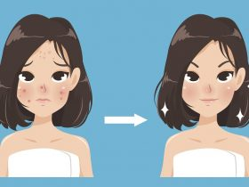 23 Cara Menghilangkan Bekas Jerawat yang Mudah dan Ampuh