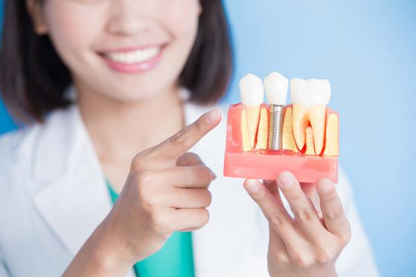 rekomendasi asuransi gigi